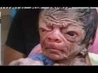 Best Miracle Of Allah 2016 ! New Born Baby Look Like 80 Years Old Man
